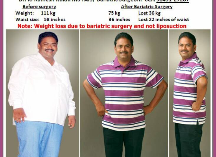 Significant weight loss in tb photo 3